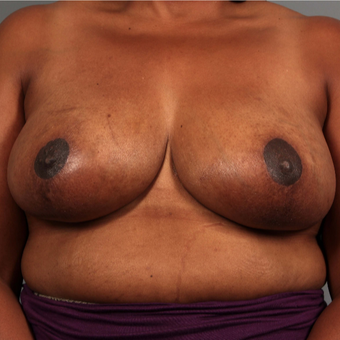 35-44 year old woman treated with Breast Reduction after 3495312