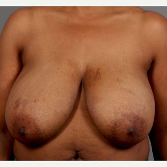 35-44 year old woman treated with Breast Reduction before 3495312