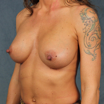 42 year old female with form stable cohesive Sientra silicone gel breast implants after 2998133