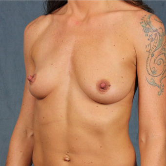 42 year old female with form stable cohesive Sientra silicone gel breast implants before 2998133
