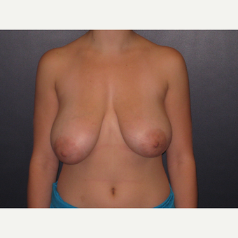 18-24 year old woman with Breast Reduction before 3027926