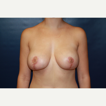 18-24 year old woman with Breast Reduction after 3027926