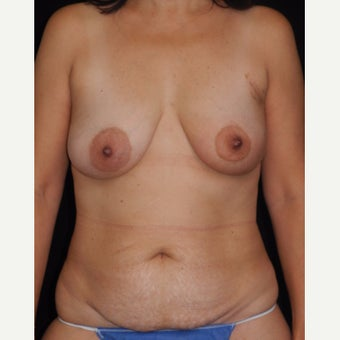 57 y/o - Immediate Left Unilateral DIEP Flap Breast Reconstruction before 2276968