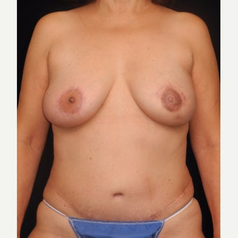 57 y/o - Immediate Left Unilateral DIEP Flap Breast Reconstruction after 2276968