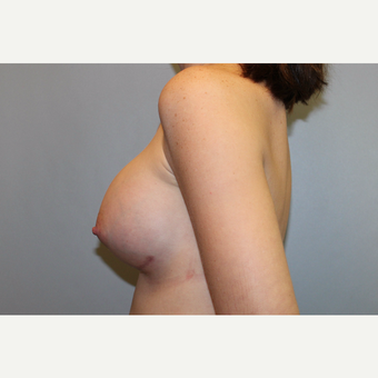 25-34 year old woman treated with Breast Augmentation after 3569942