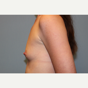 25-34 year old woman treated with Breast Augmentation before 3569942