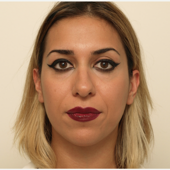 25-34 year old woman treated with Rhinoplasty before 3406454