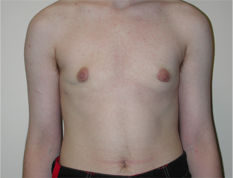 Young Man Undergoes Top Surgery as part of a Female to Male Transformation after 1190957