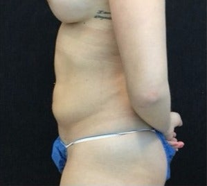25-34 year old woman treated with Liposuction to Flanks / Love Handles after 3200841