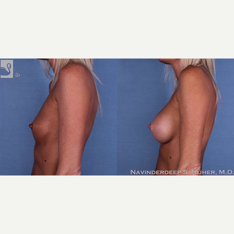 35-44 year old woman treated with Breast Augmentation after 3770038