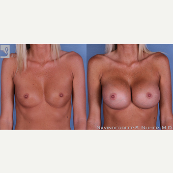 35-44 year old woman treated with Breast Augmentation before 3770038