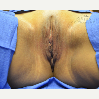 45-54 year old woman treated with Labiaplasty after 2781855