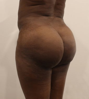 25-34 year old woman treated with Butt Lift after 2062995
