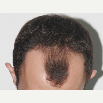 25-34 year old man treated with FUE Hair Transplant before 3238511