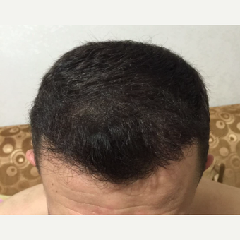 25-34 year old man treated with FUE Hair Transplant after 3238511