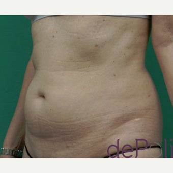 55-64 year old woman treated with SculpSure before 2637235