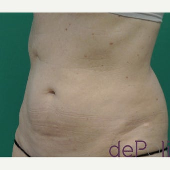 55-64 year old woman treated with SculpSure after 2637235