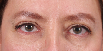 Eyelid surgery after 2751217