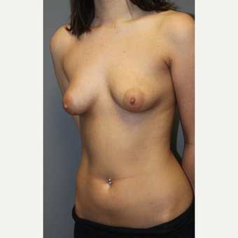 18-24 year old woman treated with Breast Implants before 3129144