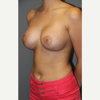 18-24 year old woman treated with Breast Implants after 3129144