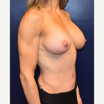 35-44 year old woman treated with Tummy Tuck after 3591121