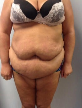 35-44 year old woman treated with Tummy Tuck before 2976157