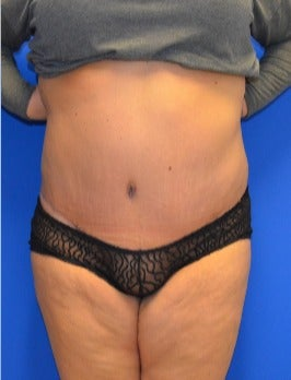 35-44 year old woman treated with Tummy Tuck after 2976157