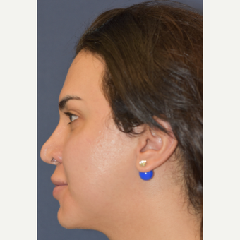 25-34 year old woman treated with Juvederm before 3549378
