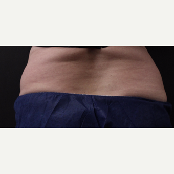 59 year old woman treated with CoolSculpting before 3384616