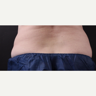 59 year old woman treated with CoolSculpting after 3384616