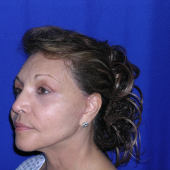 Facelift treatment after 3737766
