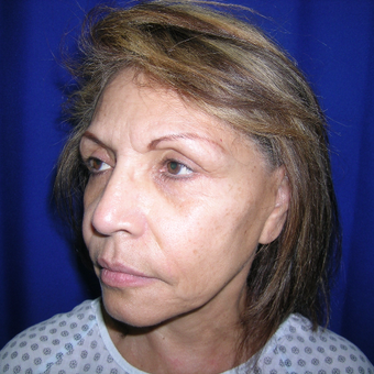 Facelift treatment before 3737766