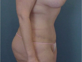 35-44 year old woman treated with Tummy Tuck after 3289642