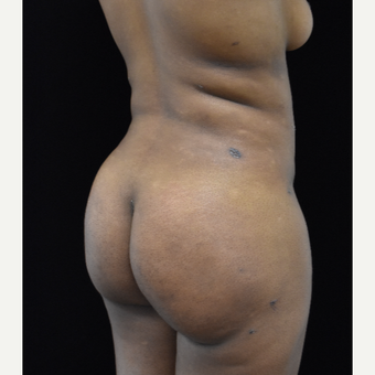 25-34 year old woman treated with Brazilian Butt Lift after 3305120