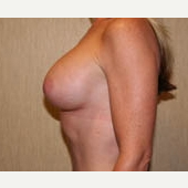35-44 year old woman treated with Breast Implants after 3299914