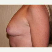35-44 year old woman treated with Breast Implants before 3299914