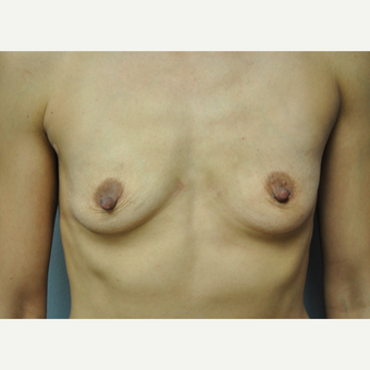 25-34 year old woman treated with Breast Augmentation before 3327151
