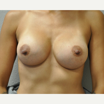 25-34 year old woman treated with Breast Augmentation after 3327151