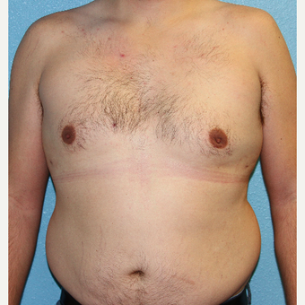 35-44 year old man treated with Male Breast Reduction after 3215370
