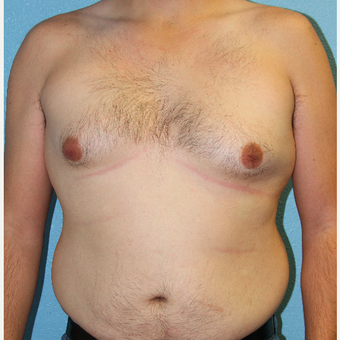 35-44 year old man treated with Male Breast Reduction before 3215370