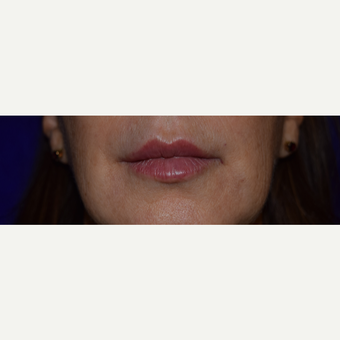50 year old woman treated with Juvederm VOLBELLA after 3744410