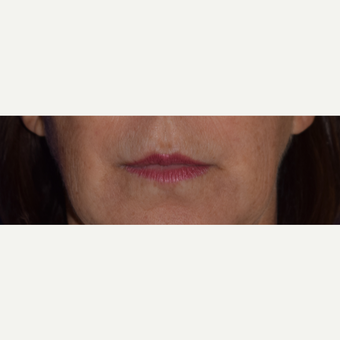 50 year old woman treated with Juvederm VOLBELLA before 3744410
