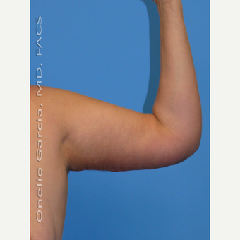 45-54 year old woman treated with Arm Lift after 3008685