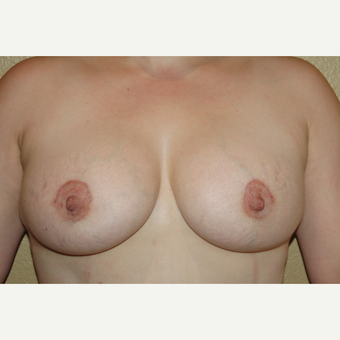 25-34 year old woman treated with Breast Augmentation after 3506540