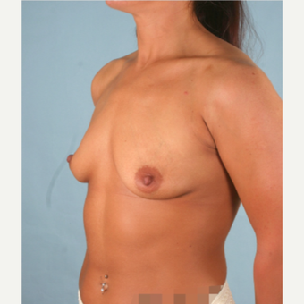 18-24 year old woman treated with Breast Implants before 3266924