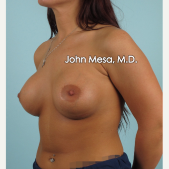 18-24 year old woman treated with Breast Implants after 3266924