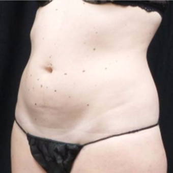 25-34 year old woman treated with truSculpt before 3424107