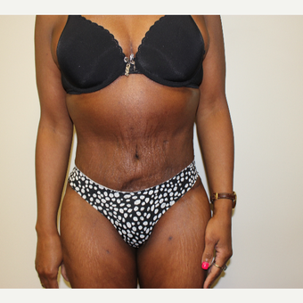 Tummy Tuck after 3417712