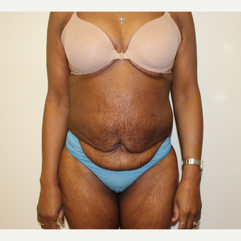 Tummy Tuck before 3417712