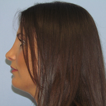 25-34 year old woman treated with Rhinoplasty after 3081167